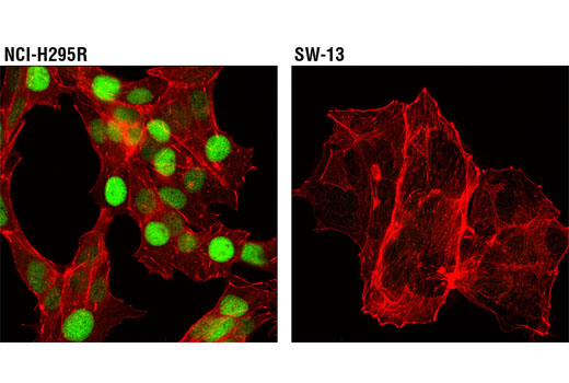 Confocal immunofluorescent analysis of NCI-H295R (positive, left) and SW-13 (negative, right) cells using STF-1 (D1Z2A) XP<sup>®</sup> Rabbit mAb (green). Actin filaments were labeled with DY-554 phalloidin (red).