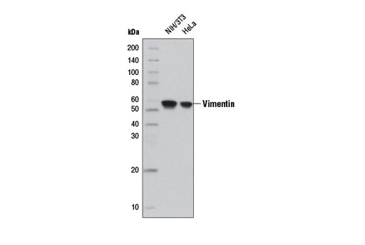 Monoclonal Antibody - Vimentin (D21H3) XP®Rabbit mAb(HRP Conjugate), UniProt ID P08670, Entrez ID 7431 #12826 - #12826
