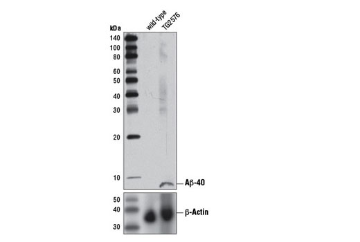 Western blot analysis of brain extracts from 13-month old wild-type and TG2576 mice using β-Amyloid (1-40 Specific) (D8Q7I) Rabbit mAb (upper) and β-Actin (D6A8) Rabbit mAb #8457 (lower).