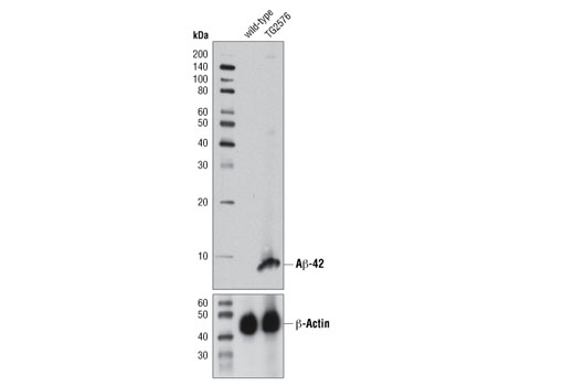 Western blot analysis of brain extracts from 13-month old wild-type and TG2576 mice using β-Amyloid (1-42 Specific) (D3E10) Rabbit mAb (upper) or β-Actin (D6A8) Rabbit mAb #8457 (lower).