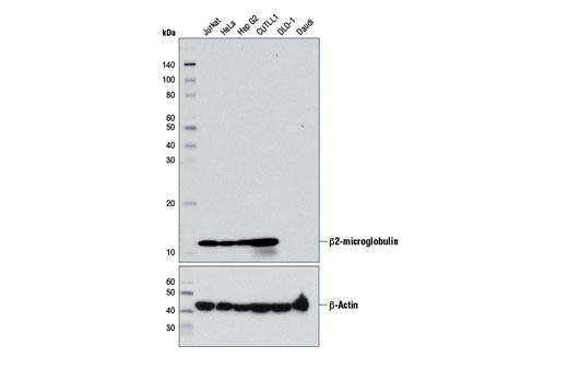 Western blot analysis of extracts from various cell lines using β2-microglobulin (D8P1H) Rabbit mAb (upper) and β-Actin (DA8) Rabbit mAb #8457 (lower). DLD-1 and Daudi cell lines are negative for β2-microglobulin due to genomic deletions at the β2-microglobulin locus.
