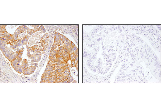 Immunohistochemical analysis of paraffin-embedded colon carcinoma using β2-microglobulin (D8P1H) Rabbit mAb in the presence of control peptide (left) or antigen-specific peptide (right).