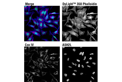 Immunofluorescence Immunocytochemistry Cellular Dyes