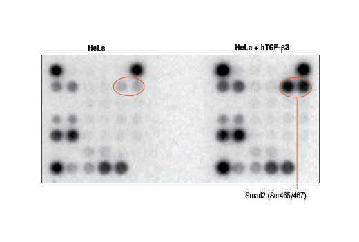 Image 4: PathScan® Stress and Apoptosis Signaling Antibody Array Kit (Chemiluminescent Readout)