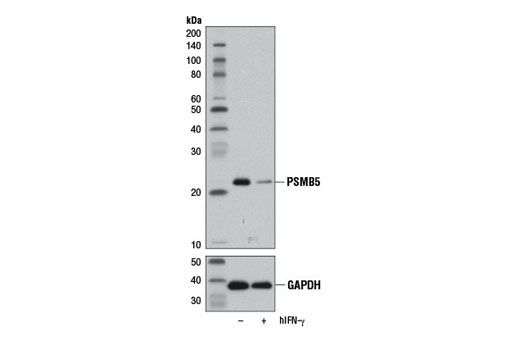 Western blot analysis of extracts from HeLa cells, untreated (-) or treated with Human Interferon-γ (hIFN-γ) #8901 (100 ng/ml, 72 hr; +), using PSMB5 (D1H6B) Rabbit mAb (upper) or GAPDH (D16H11) XP<sup>®</sup> Rabbit mAb #5174 (lower).