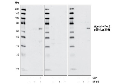 Western blot analysis of extracts from HeLa cells, mock transfected or transfected with NF-κB or NF-κB plus CBP, using Acetyl-NF-κB (Lys310) Antibody. Western blots were competed with acetylated peptide (middle) or non-acetylated peptide (right).
