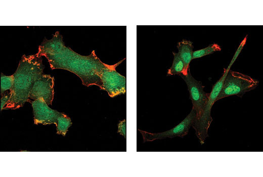Confocal immunofluorescent analysis of HT1080 cells, untreated (left) or TGFβ-treated (right), using Smad3 (C67H9) Rabbit mAb (green). Actin filaments have been labeled with Alexa Fluor<sup>®</sup> 555 phalloidin (red).