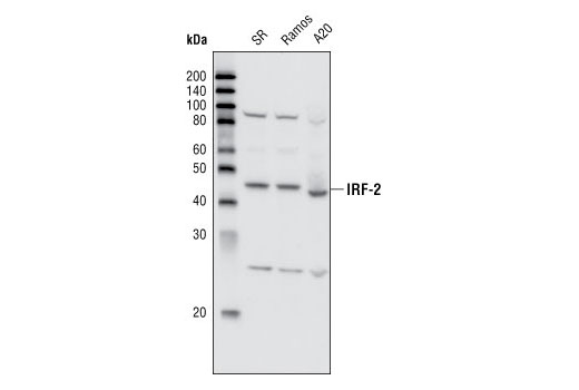Western blot analysis of extracts from SR, Ramos and A20 cells using IRF-2 Antibody.