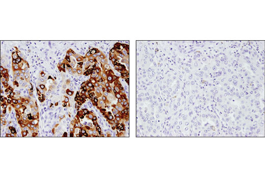 Immunohistochemical analysis of paraffin-embedded human non-small cell lung carcinoma using AGR2 (D9V2F) XP<sup>®</sup> Rabbit mAb in the presence of control peptide (left) and antigen-specific peptide (right).