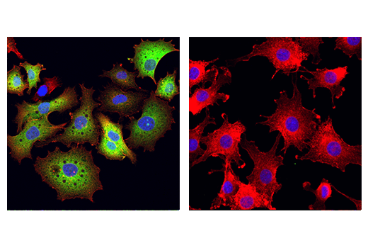 Monoclonal Antibody Immunofluorescence Frozen Response to Light Stimulus