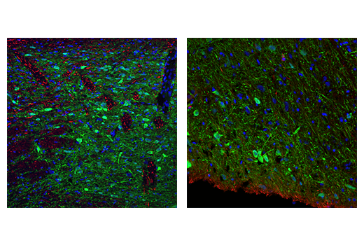 Confocal immunofluorescent analysis of rat substantia nigra shown at low magnification (left) or high magnification (right) using Tyrosine Hydroxylase (A8Y7R) Rabbit mAb (green) and Neurofilament-L (DA2) Mouse mAb #2835 (red). Blue pseudocolor = DRAQ5<sup>®</sup> #4084 (fluorescent DNA dye).