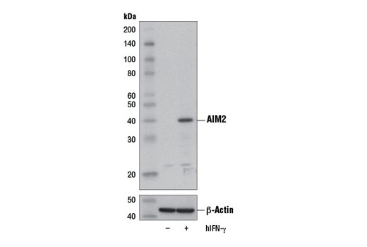 Western blot analysis of extracts from HL-60 cells, serum-starved and either untreated (-) or treated overnight with Human Interferon-γ (hIFN-γ) #8901 (100 ng/ml; +), using AIM2 (D5X7K) Rabbit mAb (upper) or β-Actin (D6A8) Rabbit mAb #8457 (lower).