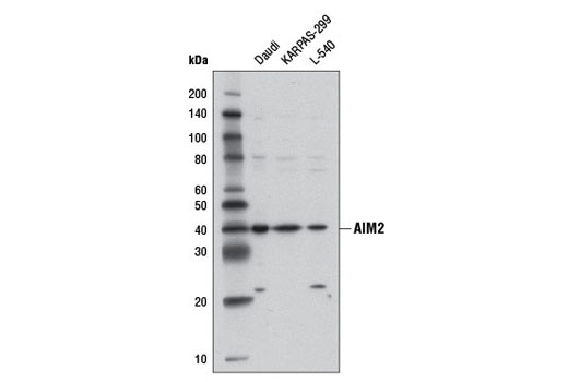 Western blot analysis of extracts from Daudi, KARPAS-299, and L-540 cell lines using AIM2 (D5X7K) Rabbit mAb.
