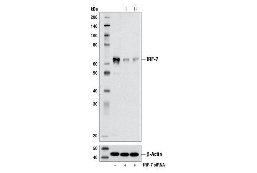 Western blot analysis of extracts from HT-29 cells transfected with 100 nM SignalSilence<sup>®</sup> Control siRNA (Unconjugated) #6568 (-), SignalSilence<sup>®</sup> IRF-7 siRNA I #13139 (+) or SignalSilence<sup>® </sup>IRF-7 siRNA II #13291 (+). Twenty-four hours after transfection, cells were treated with Human Interferon-α1 (hIFN-α1) #8927 (10 ng/ml, overnight; +) and analyzed by western blot using IRF-7 (D2A1J) Rabbit mAb #13014 (upper) or β-Actin (D6A8) Rabbit mAb #8457 (lower). The IRF-7 (D2A1J) Rabbit mAb confirms silencing of IRF-7 expression, while the β-Actin (D6A8) Rabbit mAb is used as a loading control.