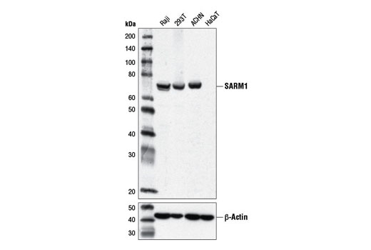 Monoclonal Antibody - SARM1 (D2M5I) Rabbit mAb, UniProt ID Q6SZW1, Entrez ID 23098 #13022 - Immunology and Inflammation