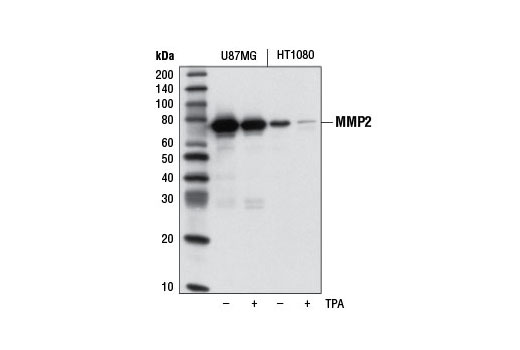 Monoclonal Antibody - MMP-2 (D8N9Y) Rabbit mAb - Western Blotting, UniProt ID P08253, Entrez ID 4313 #13132, Mmp2
