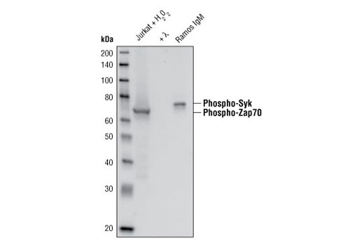 Western blot analysis of extracts from Jurkat cells treated with hydrogen peroxide (2mM for 2 minutes) or with lambda phosphatase and extracts from Ramos cells treated with anti-human IgM (12 micrograms/ml for 2 minutes) using Phospho-Zap-70 (Tyr319)/Syk (Tyr352) (65E4) Rabbit mAb.