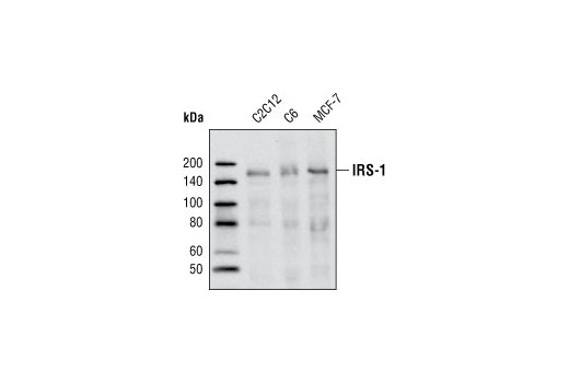 Monoclonal Antibody Insulin-Like Growth Factor Receptor Binding
