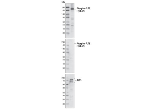Monoclonal Antibody - Phospho-FLT3 (Tyr842) (10A8) Rabbit mAb, UniProt ID P36888, Entrez ID 2322 #4577 - #4577