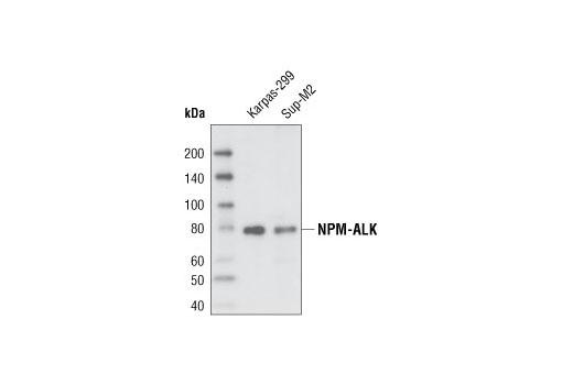Monoclonal Antibody - ALK (C26G7) Rabbit mAb - Immunoprecipitation, Western Blotting, UniProt ID Q9UM73, Entrez ID 238 #3333, Alk