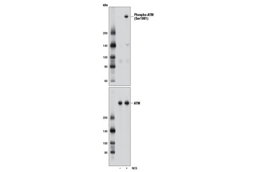 Western blot analysis of extracts from HCT 116 cells, untreated (-) or treated with neocarzinostatin (NCS 10 μM, 1 hr; +), using Phospho-ATM (Ser1981) (D25E5) Rabbit mAb (upper) and ATM (D2E2) Rabbit mAb #2873 (lower).