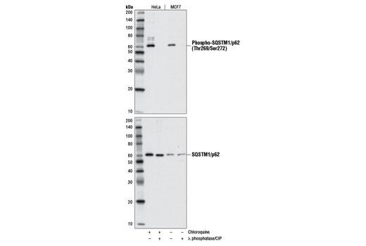 Polyclonal Antibody - Phospho-SQSTM1/p62 (Thr269/Ser272) Antibody, UniProt ID Q13501, Entrez ID 8878 #13121, Sqstm1