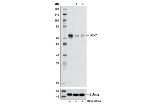 SignalSilence® IRF-7 siRNA I - Transfection, UniProt ID Q92985, Entrez ID 3665 #13139 - #13139