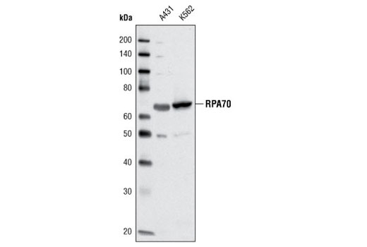Western blot analysis of extracts from A431 and K562 cells using RPA70 (C24F2) Antibody.
