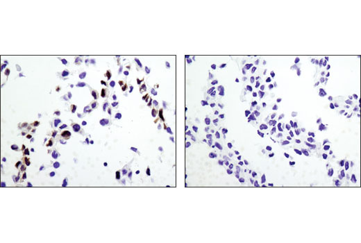 Immunohistochemical analysis of paraffin-embedded wild-type MEF (left) and RKIP knock-out MEF (right) cell pellets using RKIP (D42F3) Rabbit mAb. Cells provided courtesy of Dr. Marsha Rosner, University of Chicago, Chicago, IL.