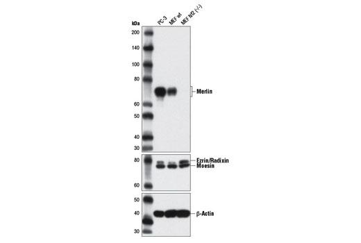 Image 21: Hippo Pathway: Upstream Signaling Antibody Sampler Kit