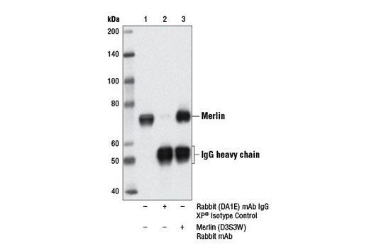 Immunoprecipitation of merlin from mouse embryonic fibroblasts (MEF) cell extracts, using Rabbit (DA1E) mAb IgG XP<sup>®</sup> Isotype Control #3900 (lane 2) or Merlin (D3S3W) Rabbit mAb (lane 3). Lane 1 is 10% input. Western blot analysis was performed using Merlin (D3S3W) Rabbit mAb.