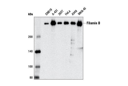 Monoclonal Antibody - Filamin B (D7E4W) Rabbit mAb - Western Blotting, UniProt ID O75369, Entrez ID 2317 #12979 - Cytoskeletal Signaling