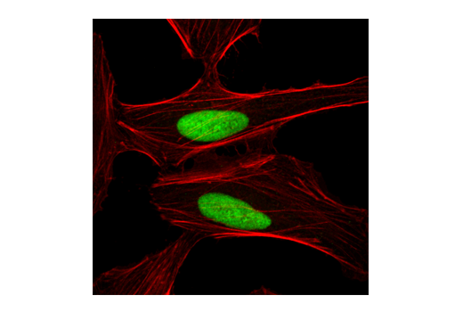 Confocal immunofluorescent analysis of HeLa cells using Ku80 Antibody (green). Actin filaments have been labeled with DY-554 phalloidin (red).