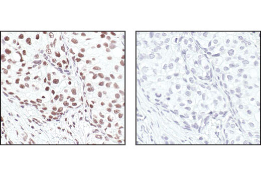 Immunohistochemical analysis of paraffin-embedded human breast carcinoma, showing nuclear localization, using Ku80 Antibody preincubated with control peptide (left) or antigen-specific peptide (right).