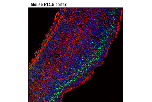 Confocal immunofluorescent analysis of mouse E14.5 cortex using Neurogenin 2 (D2R3D) Rabbit mAb (green). Actin filaments were labeled with DY-554 phalloidin (red). Blue pseudocolor = DRAQ5<sup>®</sup> #4084 (fluorescent DNA dye).
