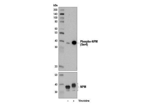 Chemical Modulators - Vincristine - 5 mg #13043, Cell Cycle / Checkpoint Control