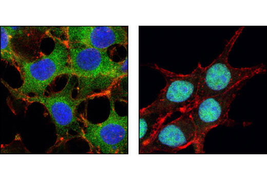 Confocal immunofluorescent analysis of SH-SY5Y cells, IGF-I treated (left) or LY294002-treated, using FoxO3a (75D8) Rabbit mAb (green). Actin filaments have been labeled with Alexa Fluor® 555 phalloidin (red). Blue pseudocolor = DRAQ5® #4084 (fluorescent DNA dye).