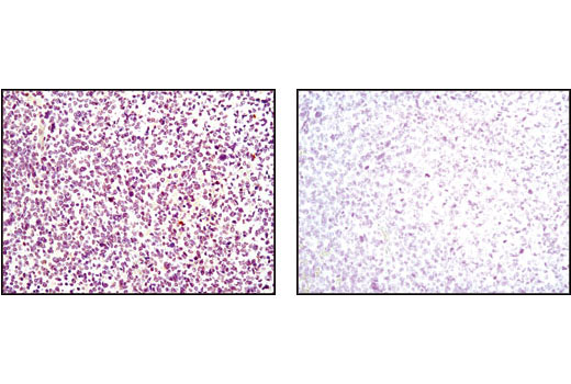 Immunohistochemical analysis of paraffin-embedded human astrocytoma using p35/25 (C64B10) Rabbit mAb #2680 in the presence of control peptide (left) or antigen specific peptide (right).