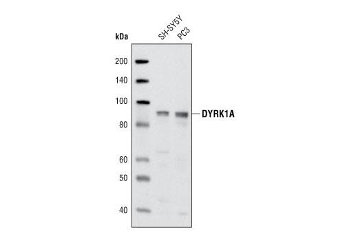 Polyclonal Antibody - DYRK1A Antibody - Immunoprecipitation, Western Blotting, UniProt ID Q13627, Entrez ID 1859 #2771 - #2771