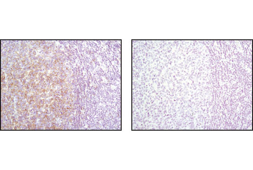 Immunohistochemical analysis of paraffin-embedded human tonsil tissue using Lyn (C13F9) Rabbit mAb in the presence of control peptide (left) and antigen specific peptide (right).