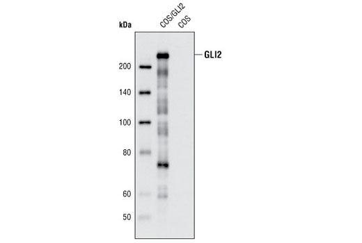Polyclonal Antibody Western Blotting Spinal Cord Development