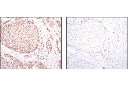 Immunohistochemical analysis of paraffin-embedded human breast carcinoma using Akt (pan) (C67E7) Rabbit mAb in the presence of control peptide (left) or Akt (pan) Blocking Peptide #1085 (right).