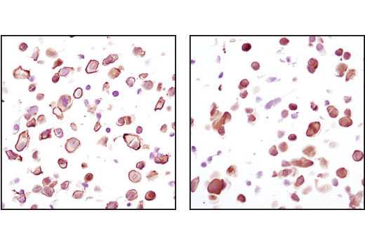 Immunohistochemical analysis using Akt (pan) (C67E7) Rabbit mAb on SignalSlide (TM) Phospho-Akt (Ser473) IHC Controls #8101 (paraffin-embedded LNCaP cells, untreated (left) or LY294002-treated (right)).