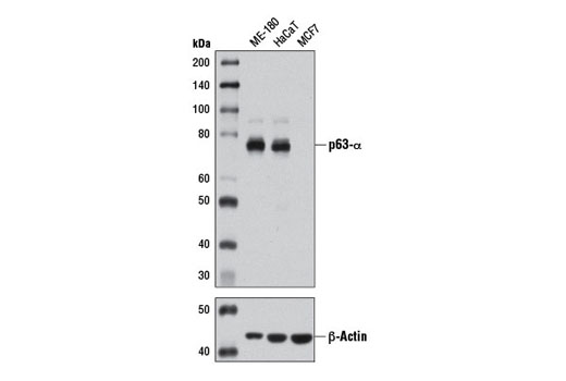 Western blot analysis of extracts from ME-180 (+), HaCaT (+), and MCF7 (-) cells using p63-α (D2K8X) XP<sup>®</sup> Rabbit mAb (upper) or β-Actin (D6A8) Rabbit mAb #8457 (lower).