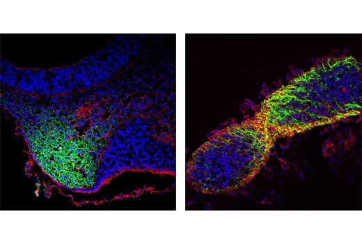Confocal immunofluorescent analysis of mouse embryonic day 10.5 frontal-nasal mesenchyme (left), and mid- to hindbrain (right) using CRABP1 (D7F9T) Rabbit mAb (green). Actin filaments were labeled with DY-554 phalloidin (red). Blue pseudocolor = DRAQ5<sup>®</sup> #4084 (fluorescent DNA dye).