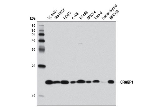 Western blot analysis of extracts from various cell lines and human thyroid tissue using CRABP1 (D7F9T) Rabbit mAb.