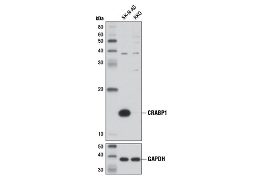 Western blot analysis of extracts from SK-N-AS (positive) and RKO (negative) cells using CRABP1 (D7F9T) Rabbit mAb (upper) and GAPDH (D16H11) XP<sup>®</sup> Rabbit mAb #5174 (lower).