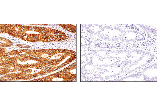 Immunohistochemical analysis of paraffin-embedded colon carcinoma using CD46 (D6N7H) Rabbit mAb in the presence of control peptide (left) or antigen-specific peptide (right).