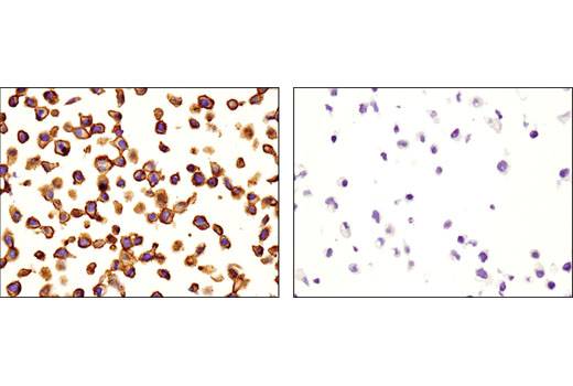 Immunohistochemical analysis of paraffin-embedded HeLa (left) and CHO (right) cell pellets using CD46 (D6N7H) Rabbit mAb.