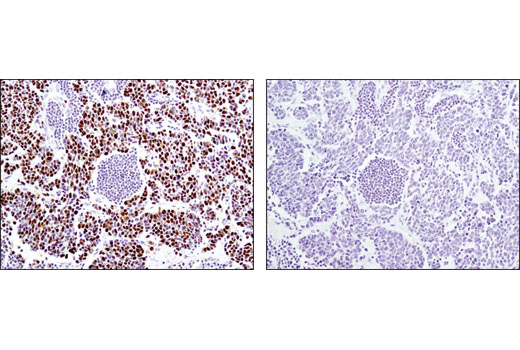 Immunohistochemical analysis of paraffin-embedded human lung carcinoma using MCM4 (D3H6N) XP® Rabbit mAb in the presence of control peptide (left) or antigen-specific peptide (right).